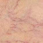 Esclerosis química de varices