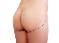 implantes-gluteos
