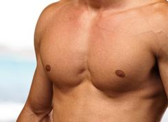 implantes-pectorales