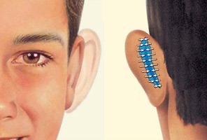 cirugía oreja