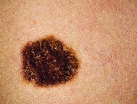 tratamiento-cancer-piel-barcelona