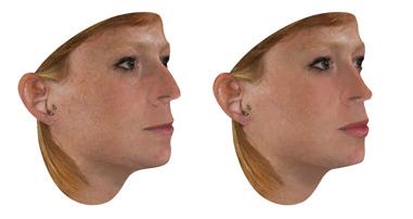 simulador-3D-cirugias-plasticas