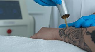 laser-eliminacion-tatuajes