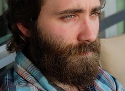 trasplante-barba-bigote-granollers