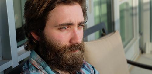 trasplante-barba-bigote