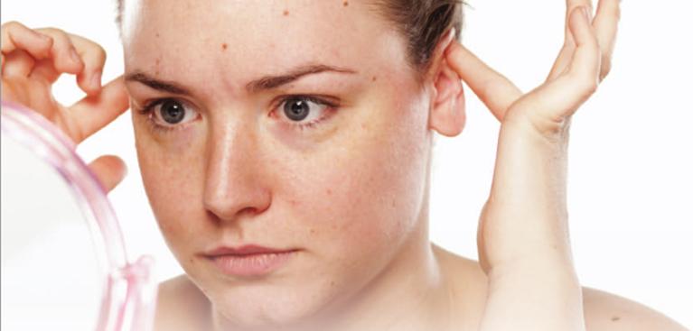 orejas-prominentes