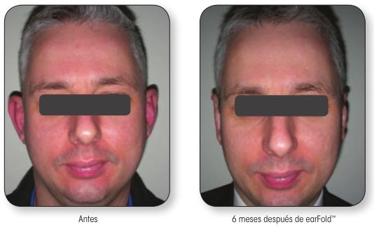 resultados-earfold